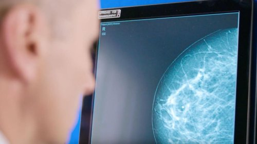 Artificial intelligence set to assist breast screening in Ireland