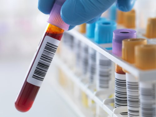 Blood test that can quickly diagnose virus could be available by spring