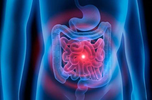 Bei Darmbeschwerden: Diese 6 Lebensmittel helfen bei Blähungen, Verstopfung und Durchfall
