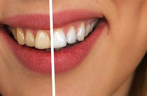 Schöne Zähne: Wie du ein strahlendes Lächeln bekommst