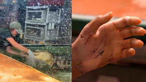 How Gymnastics Helped Utah Woman Survive Harrowing Gator Attack