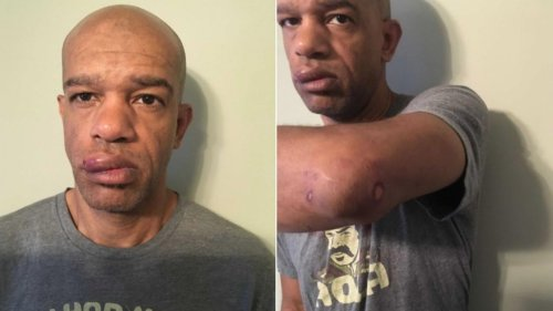 Is Black Undercover Cop's Beating Proof of Racism Within the SLMPD?