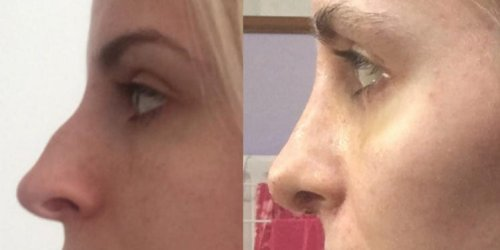 Here's how a $10,000 rhinoplasty procedure can dramatically change your nose