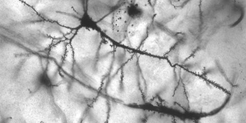 A drug that could change the way Parkinson's disease is treated just got closer to approval