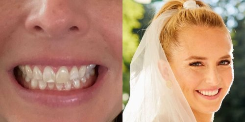 I tried $50 teeth whitening strips for 2 months before my wedding. They left me with a dazzling smile — but lighting matters more for your photos of the big day.