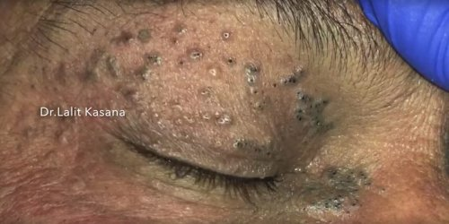 Watch a dermatologist expertly extract clusters of 50-year-old blackheads around a man's eye