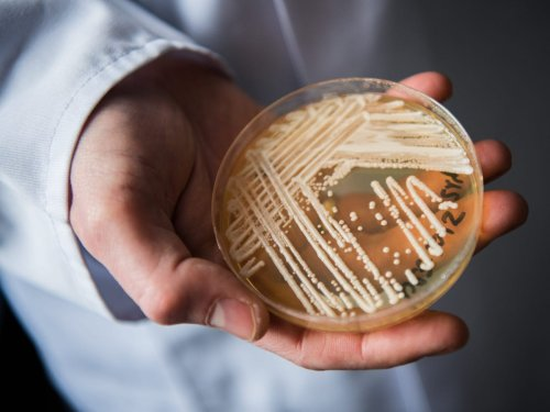 Untreatable 'superbug' fungus that resists all drugs detected in Texas and DC