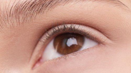 Wimpern fallen aus: Ursachen und was dagegen hilft