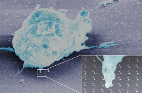 New nanochip reveals how immune system copes with cancer