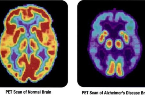Brain cholesterol can lead to Alzheimer's, study suggests