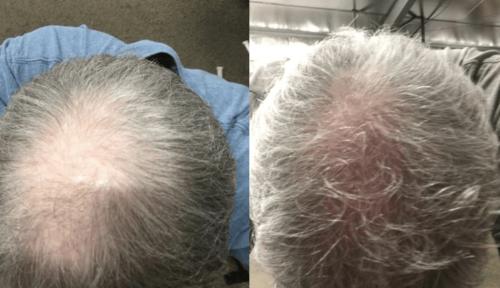 Do Laser Caps Help Boost Hair Growth?