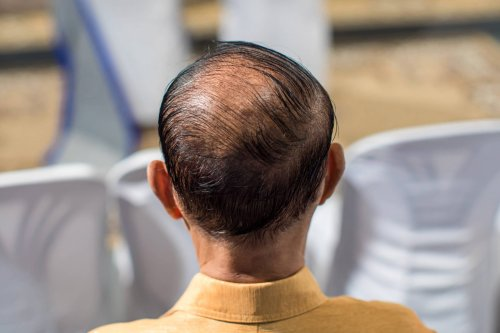 Do I Have Male or Female Pattern Baldness?