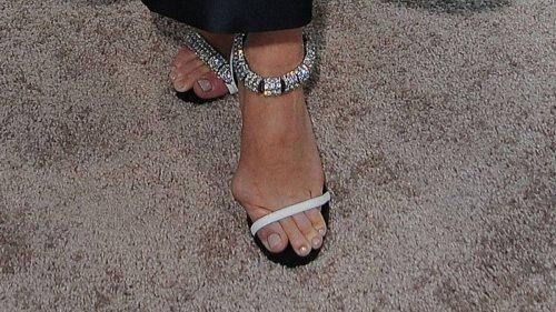 Promi-Damen mit verformten Füßen: Hallux Valgus, Ballenzehe Co.