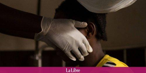 """Un cas de variole du singe détecté aux Etats-Unis : """"Cela ne va pas se mettre à décimer les gens comme le coronavirus"""""""