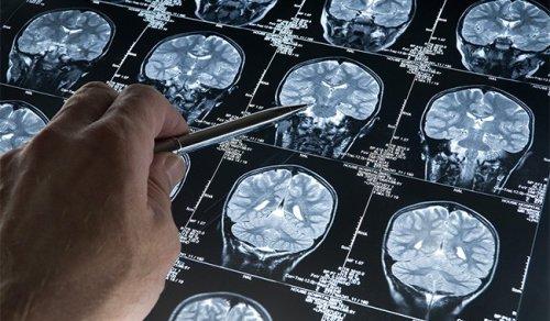 Alzheimer : des progrès qui suscitent l'espoir !