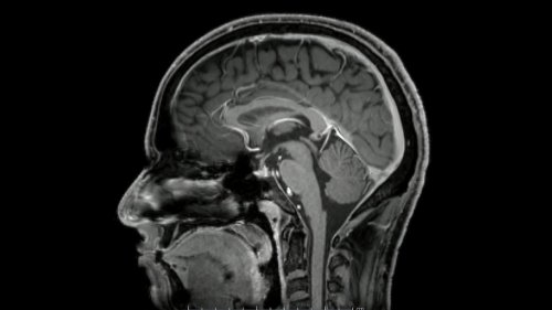 Le Covid-19 pourrait altérer la matière grise du cerveau même chez les cas bénins