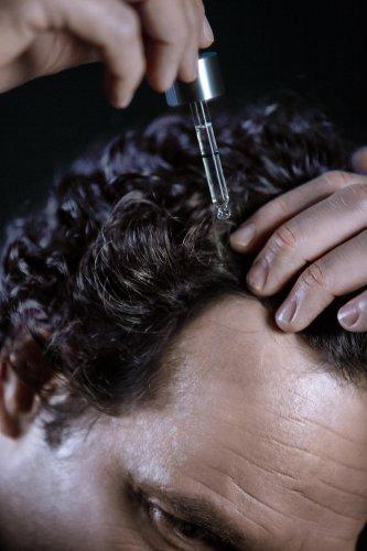 Comment traiter la chute des cheveux ?