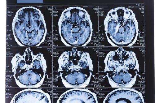 Un algorithme prédit la progression de la maladie de Parkinson chez des patients