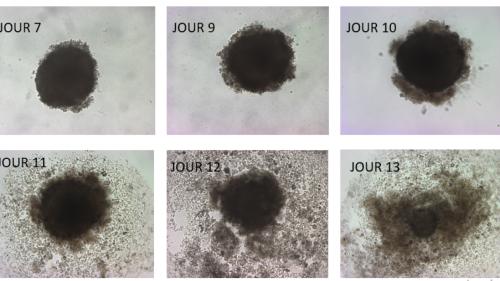 La découverte incroyable d'une équipe de l'UCLouvain: l'oméga 3 DHA est un tueur de cellules cancéreuses