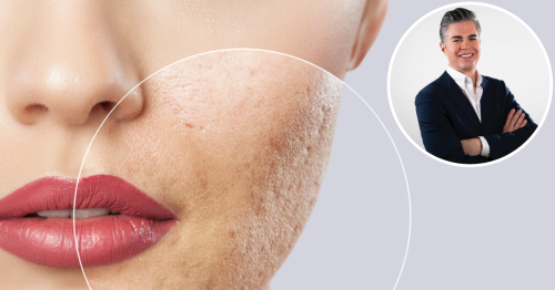Top Skincare Experts Debunk Common Acne Myths