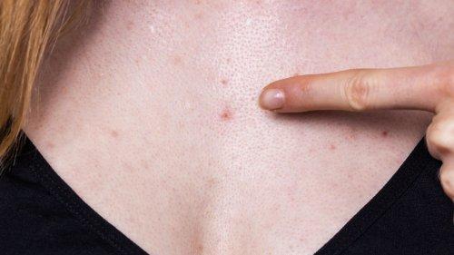 Hitzepickel: Hautausschlag bei Wärme