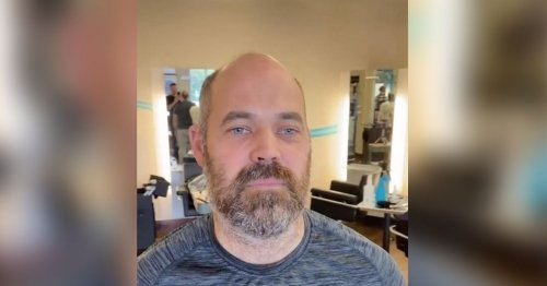 Bald man looks ten years younger after having hairpiece fitted