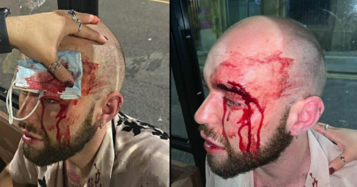 Two arrested after appalling homophobic attack that has shocked city