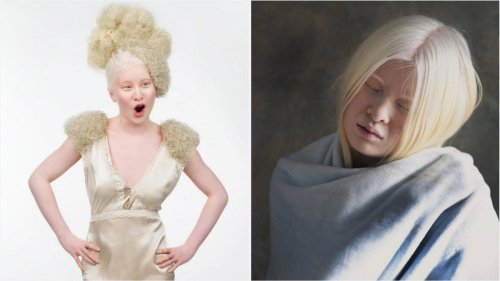 Abandoned as a baby in China because of the way she looked, this Albino model has now taken the fashion world by storm and even landed a feature in the prestigious Vogue Italia.