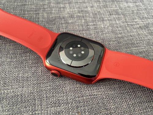 Apple Umfrage zu Gesundheitsfunktionen der Apple Watch: Blutzuckermessung wird thematisiert