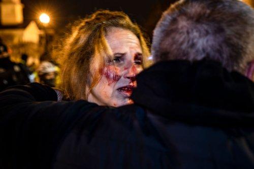After Punching A Trump Protestor In Self Defense, Black Woman Loses Job | MadameNoire