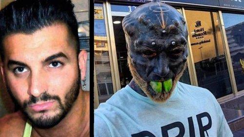 """Für den perfekten """"Black Alien""""-Look: Mann lässt sich die Nase und Ohren entfernen"""