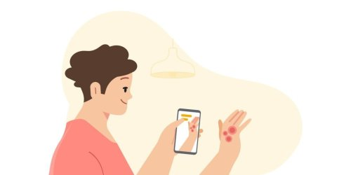 Google's New AI Tool Can Help Identify Common Skin Issues