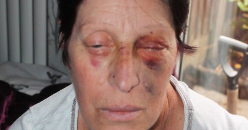 Thug hit dementia champion 'like a boxer' as she tried to stop him kicking dog