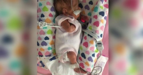 Miracle baby girl born three months early was the size of a 'biro' pen