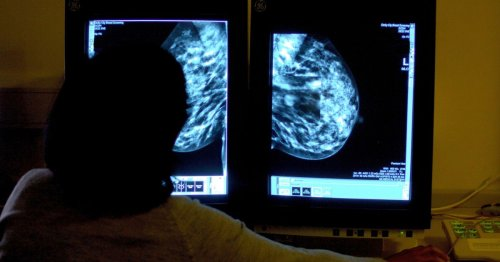 Simple changes can cut cancer cases, new study shows