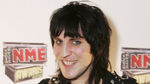 The untold truth of Noel Fielding from The Great British Bake Off
