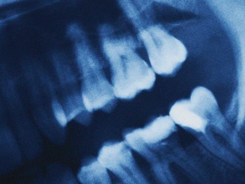 COVID-19 (coronavirus) and teeth: Is there a connection?
