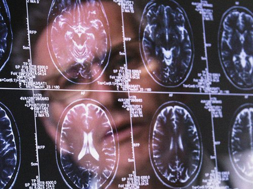 What are the 13 factors that shape brain health?