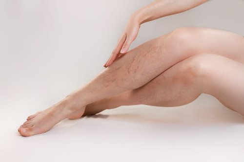 10 Things You Need to Know About Varicose Veins and Spider Veins