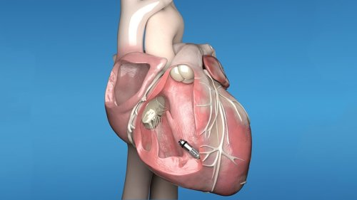 Insertable Cardiac Monitors Improve AF Detection After Stroke
