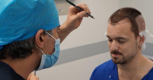 Why I Traveled to Turkey for Hair Transplant Surgery
