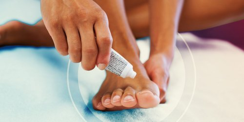 Podiatrists Say You Should Never Ignore Toenail Fungus—Here's Why