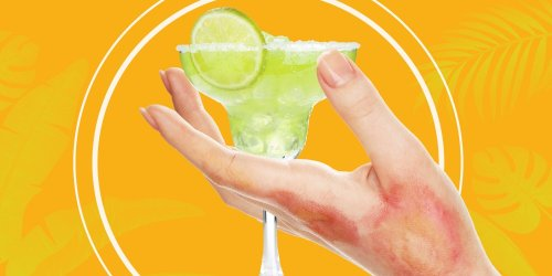 Margarita Burn Is a Real Thing You Might Want to Know About This Summer
