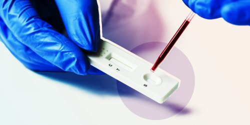 Experts Warn Against Taking COVID-19 Antibody Tests—Here's Why