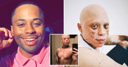 Man developed alopecia and vitiligo after 'allergic reaction' to acne treatment