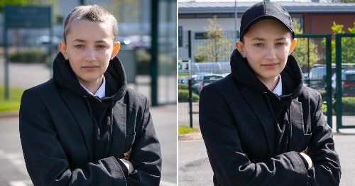 School backs down after refusing to let girl with hair loss wear cap to class