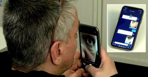 New Covid test can tell if you have virus in minutes by scanning your eye