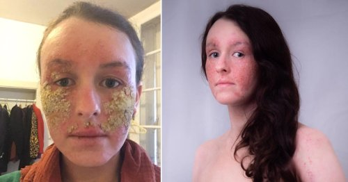 Woman covered in yellow scabs from steroid cream withdrawal forced to tell strangers she's not contagious
