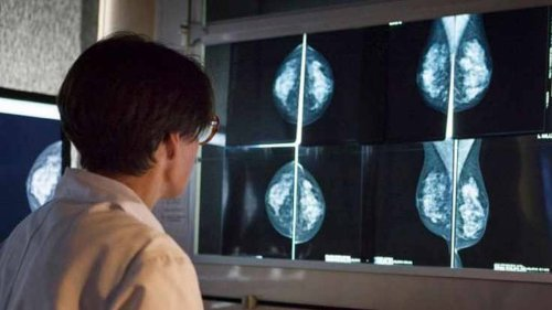 Side effect from COVID vaccines could produce abnormal mammogram results, doctors say
