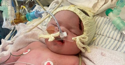 Heartbroken parents say baby died from severe injuries in 'horror film' delivery